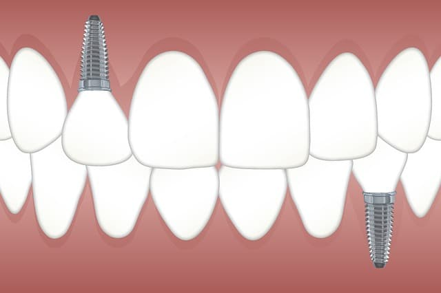ما هي زراعة الاسنان تعرف على انواع ومراحل وخطوات والم ومخاطر زراعة السن طب الاسنان